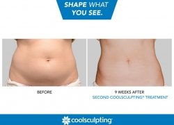 Cool Sculpting – What To Know And Where to Get It